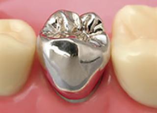 パラジウム合金 クラウン(銀歯)